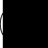 食道裂孔ヘルニア